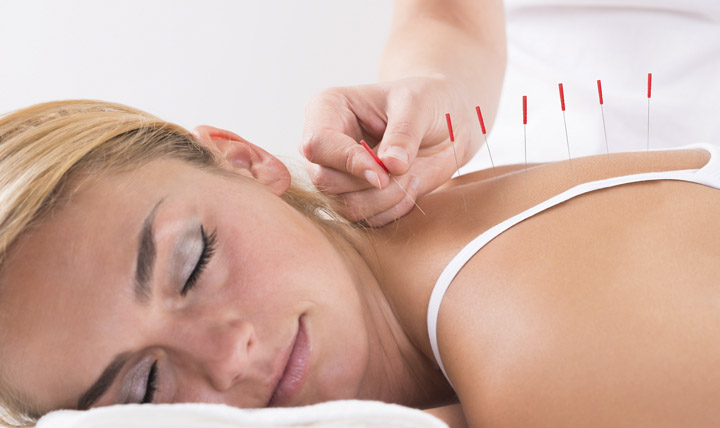 acupuntura para ayudar a el estres y la ansiedad